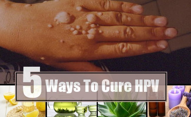 5-Ways-To-Cure-HPV.jpg